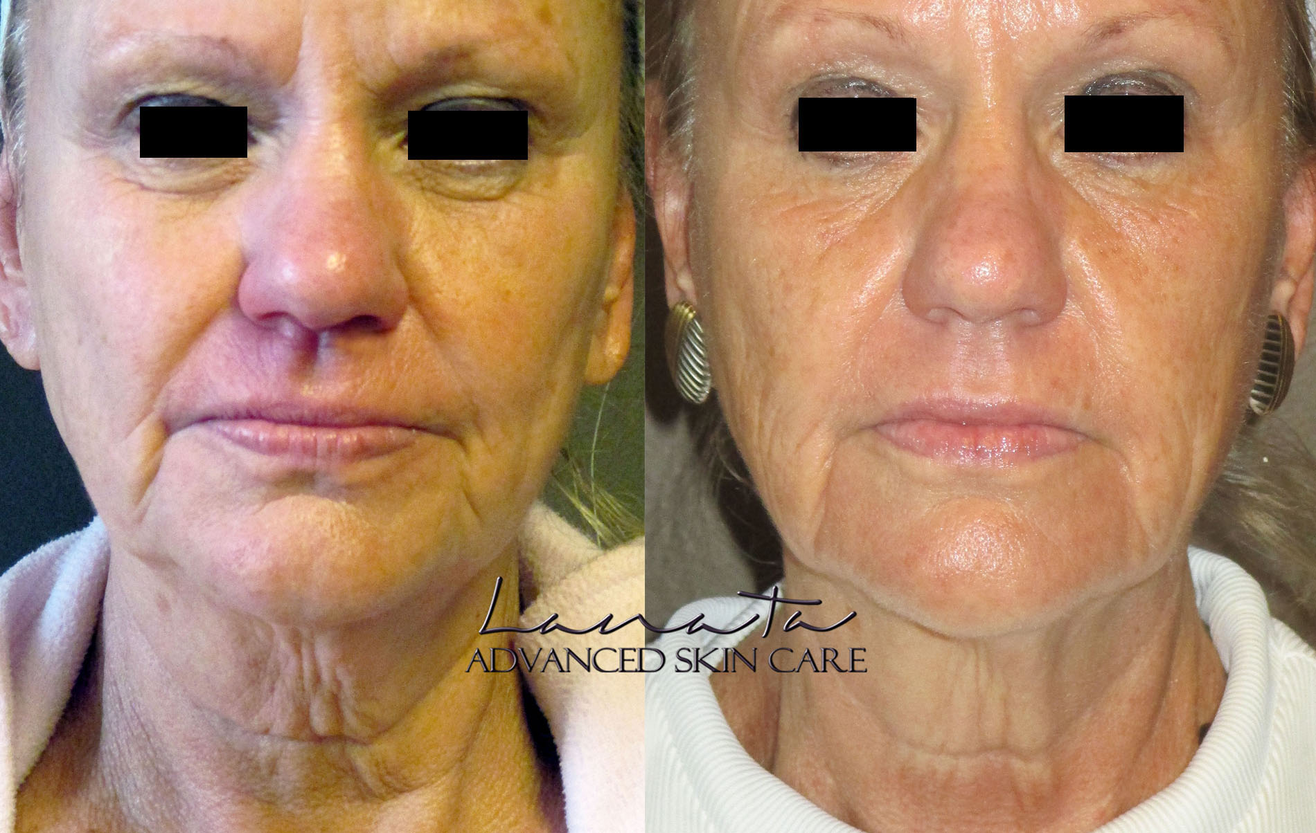 lanata advanced skincare denver microcurrent before after 5