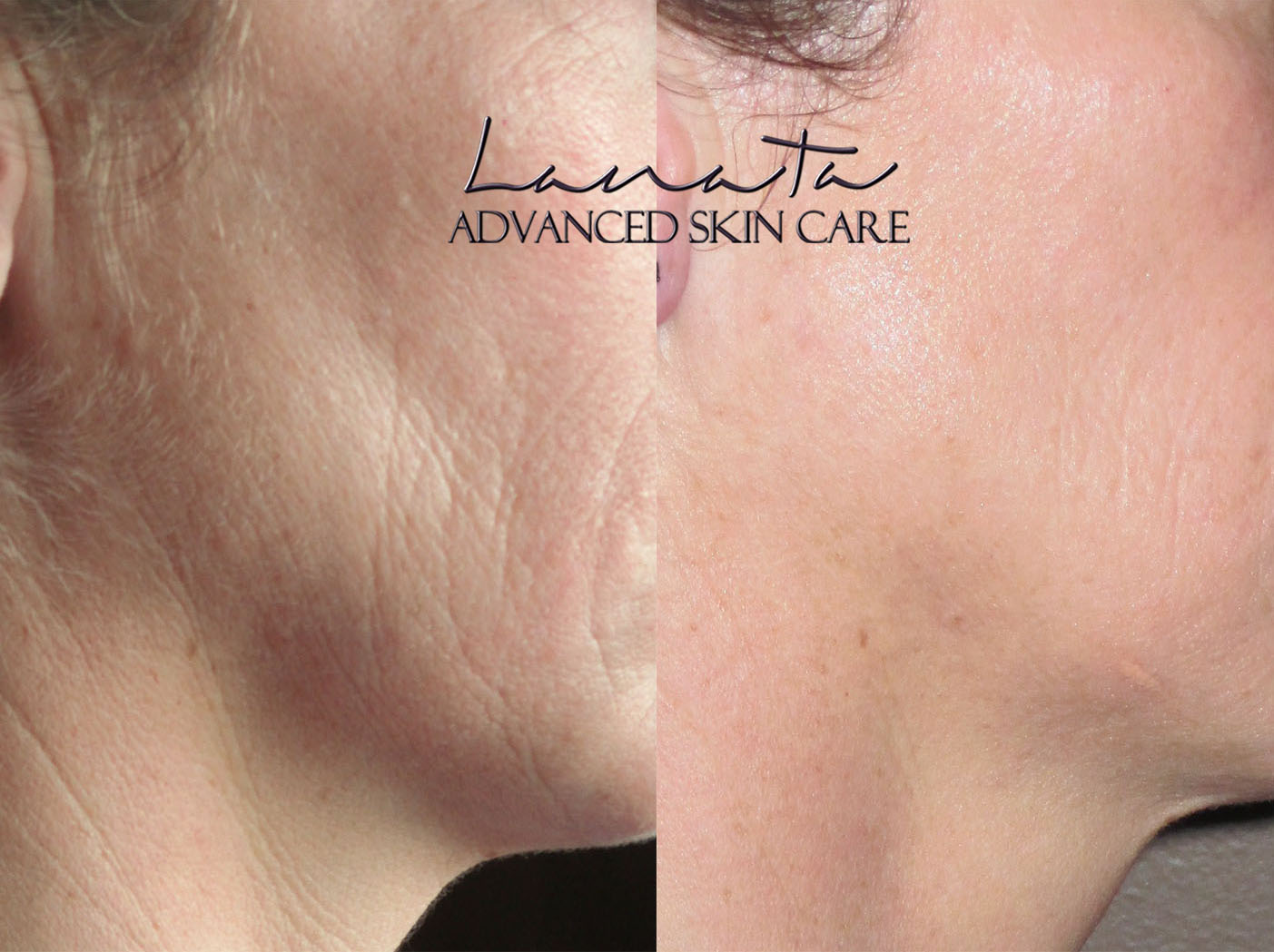 lanata advanced skincare denver microcurrent before after 7
